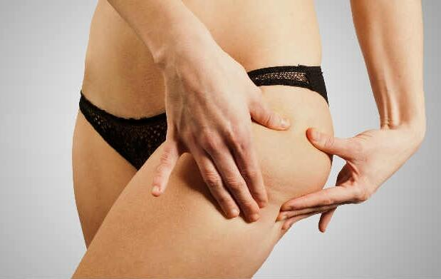 Reduce celulitis y más con carboxiterapia