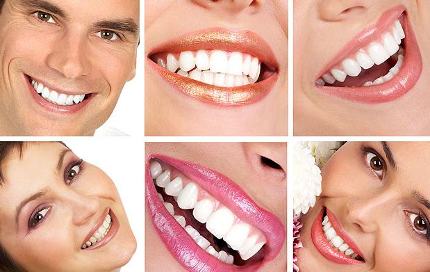 Revisión bucal completa + empaste dental