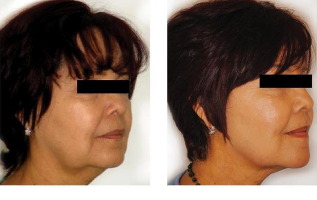 El tratamiento facial de las estrellas