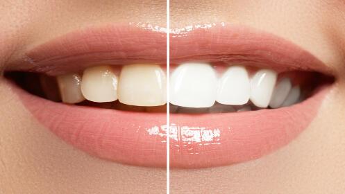 ¡Regala sonrisas! Blanqueamiento dental + revisión por 49€