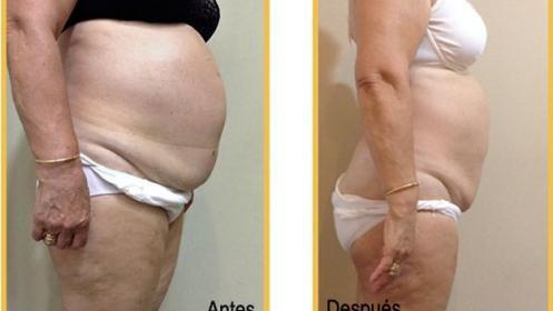 Liposucción sin cirugía: criolipólisis + láser frío Zerona