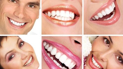 Limpieza dental con ultrasonidos + pulido + blanqueamiento