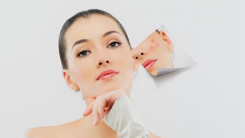 Tratamiento facial antimanchas con ácidos