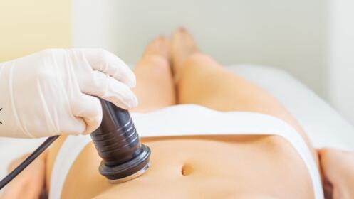 El bono reductor más efectivo: 3 sesiones de cavitación + presoterapia